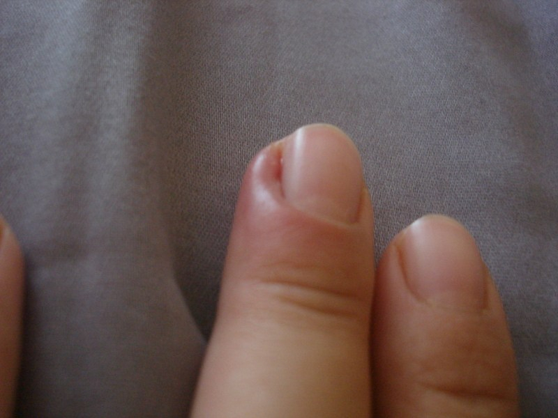 Paronychia - Causes, Symptoms, and Treatment