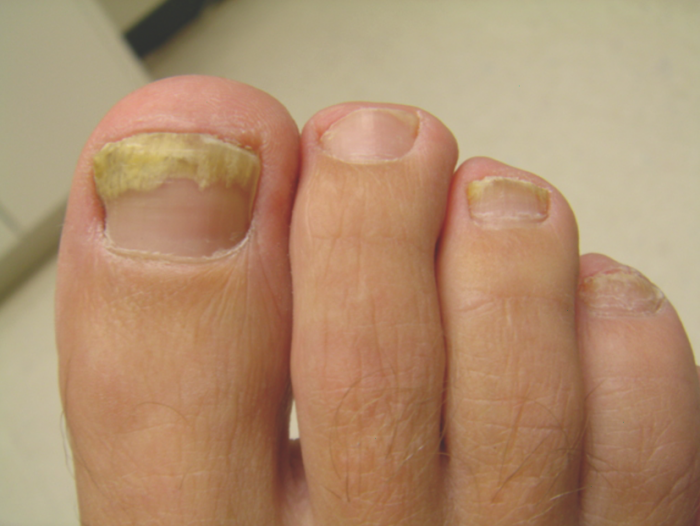 How To Treat Nail Fungus on Diabetic Patients
